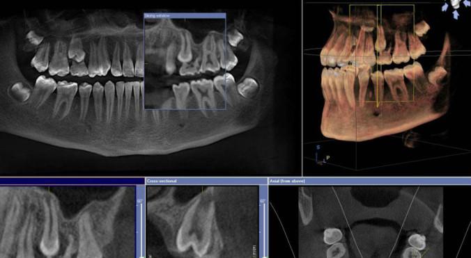 3d-Röntgen direkt in unserer Praxis