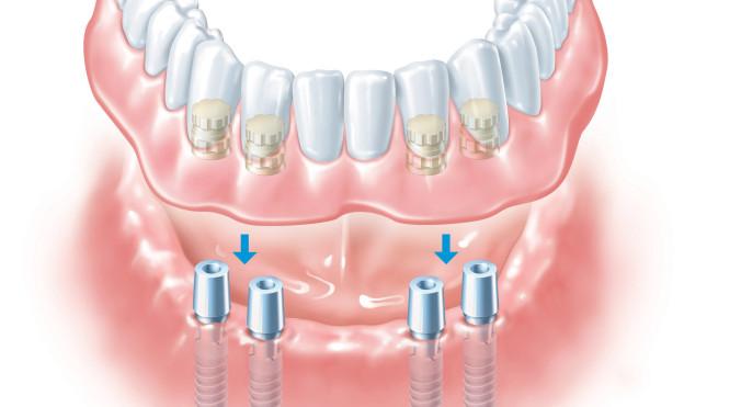 schematische Darstellung einer dentale Vollprothese im Unterkiefer