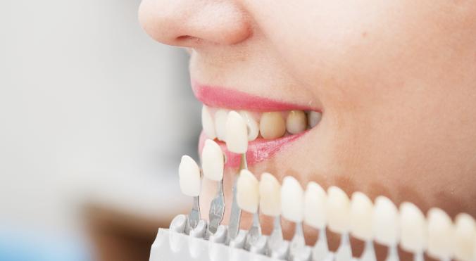 Die Auswahl von Zahnfarbe und Material vor der zahnästhetischen Versorgung