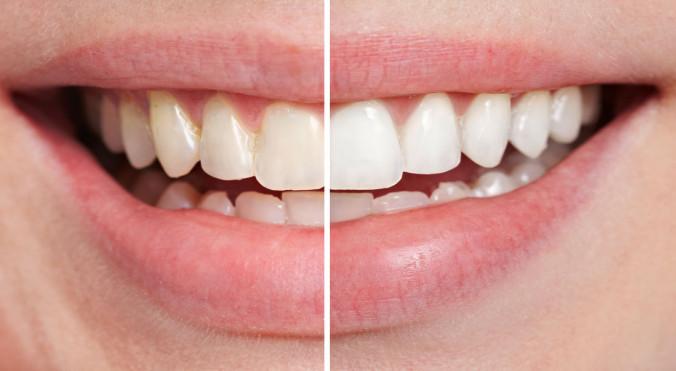 Bleaching hellt die Zähne auf – hier ein Vorher-Nachher-Vergleich einer jungen Studentin