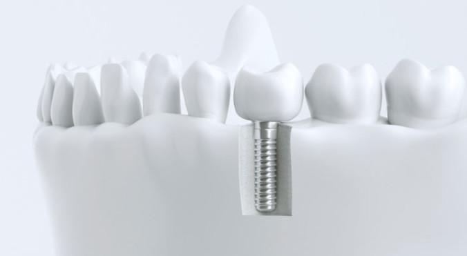 schematische Darstellung eines Implantates inklusive prothetischer Versorgung am 3D Modell