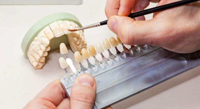 Arbeit mit Zahnfarben am Zahnersatz auf dem Gipsmodell, im eigenen Labor