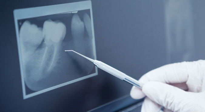 Digitales Röntgenbild zur Erfolgskontrolle nach abgeschlossener Wurzelbehandlung