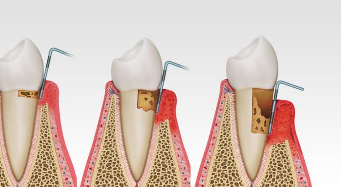 schematische Darstellung chronischer Zahnfleischentzündungen